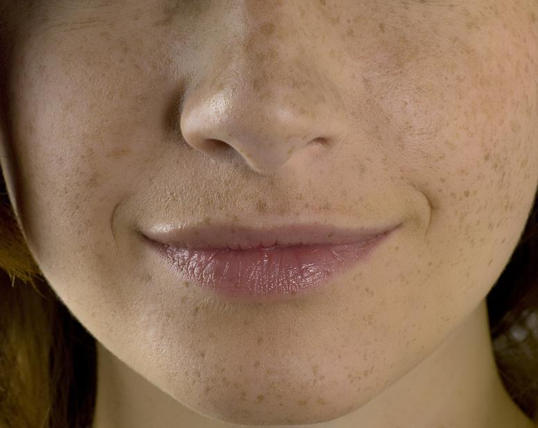 Cicatrices pigmentaires acne